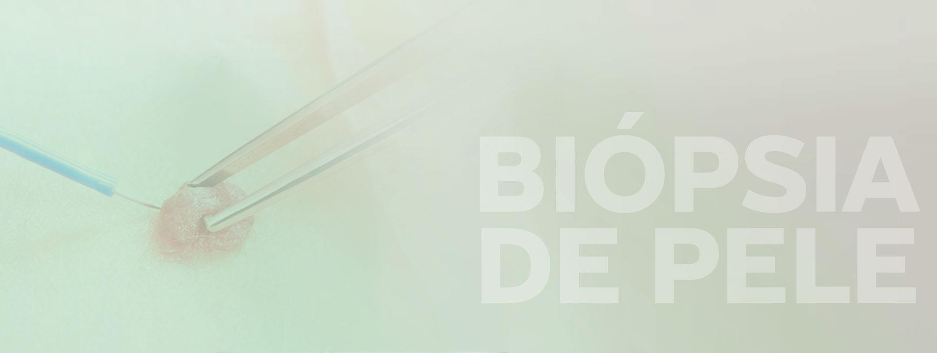 Biopsia de pele em campo grande ms